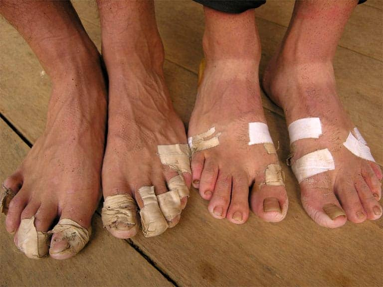 Distance Running Foot Care