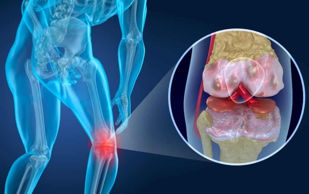 running with arthritis knee